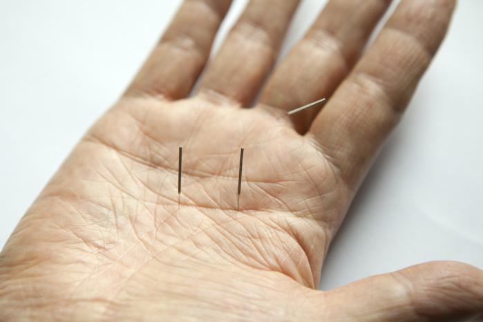 Akupunktur i Aarhus, Skanderborg og Ry